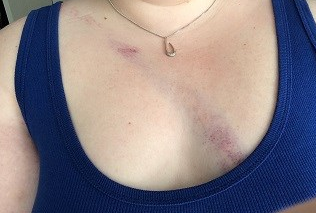 Bruise.png